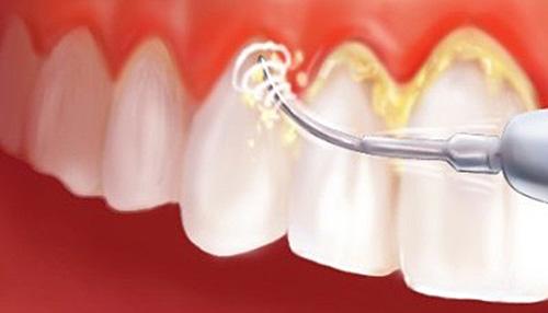 Снятие зубного налета скалером